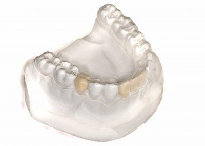Gutiera de contentie cu dinti