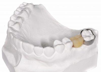 Mentinator de spatiu fix cu dinte
